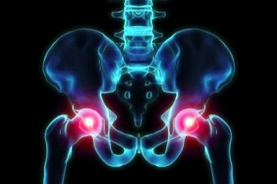 Riabilitazione per protesi all'anca