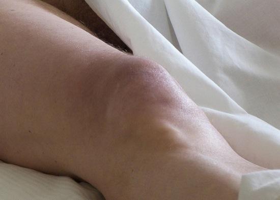 Rottura del Tendine Rotuleo: Perché, i Sintomi e Cosa Fare