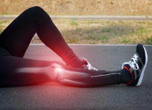 ginocchio tendinite poplitea